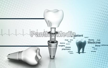 implant dentystyczny