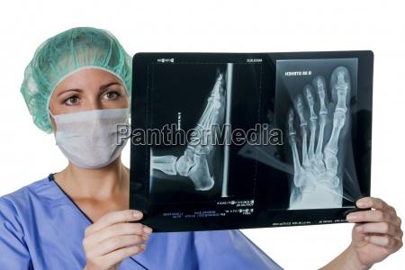 lekarz patrzac na x ray pryszczycy
