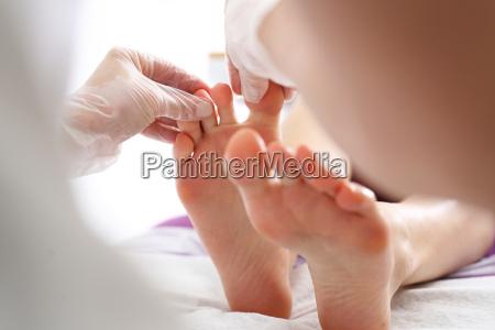 toe and nail fungus woman at