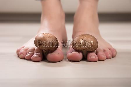 zdrowie zdrowia bol stopa grzyb wachanie