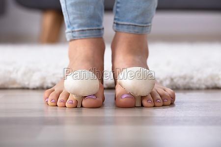 bol stopy zdrowie miedzy palce u