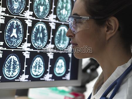 diagnostyka neurologii skanowanie mozgu czlowieka na