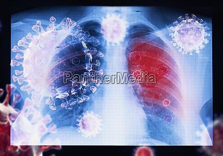 zakażenie, wirusem, choroby, koronawirusowej, covid-19, w - 28932662