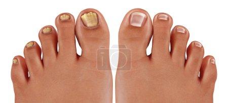 stopy, zdrowy, medycyna, Leczenie, Choroba, niezdrowe - B245907240