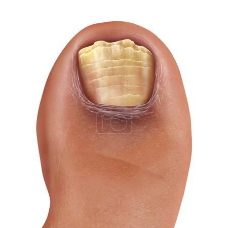 stopy, medycyna, Leczenie, Choroba, niezdrowe, grzyb - B256030336